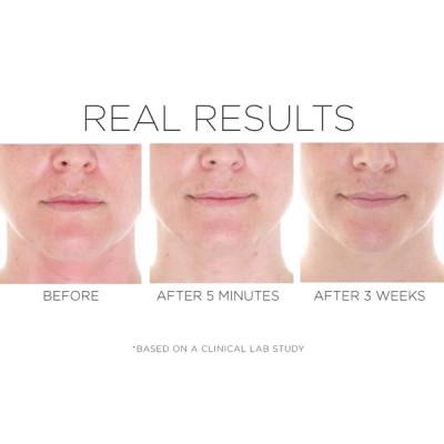 Skin Recovery Serum image 2